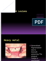 Pigmented Lesions Ppt07