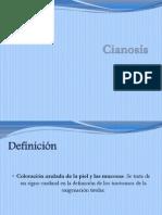 Cianosis.pptx
