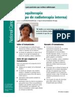 braquiterapia (1)