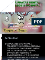 DENTAL CARIES.pptx