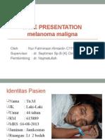 Case Presentation Melanoma Maligna