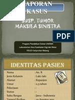 tumor mulut