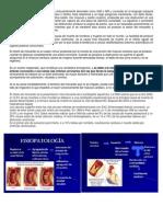 El término infarto agudo de miocardio
