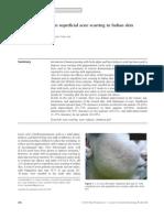jurnal akne vulgaris