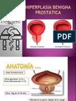Hiperplasia Benigna Prostática