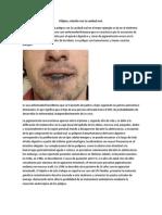 Pólipos, relacion con cavidad oral