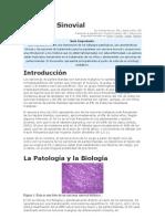 Sarcoma Sinovial