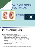 Gambaran Radiografis Gigi Impaksi