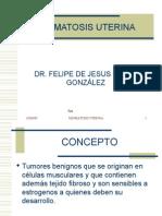 MIOMATOSIS UTERINA[2]