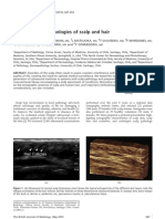 Sonography in Pathologies of Scalp and Hair