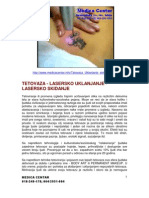 Tetovaza - Lasersko Uklanjanje - Lasersko Skidanje