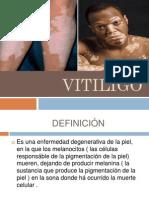 # 16 Vitiligo