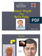 Bell's palsi