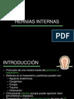 Hernias Internas