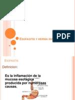 Esofagitis y Hernia Hiatal[1] 2012