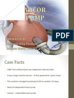 Levacor Heart Pump Presentation