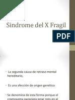 Sindrome Del X Fragil