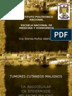 tumores cutaneos malignos