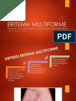 Eritema Multiforme (Nusa Purnawan Putra)
