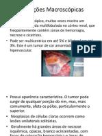 Cancer renal apresentação