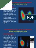 Hipertiroidismo y Otras Causas de Tirotoxicosis (e)
