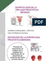 FISIOPATOLOGÍA DE LA HIPERPLASIA PROSTÁTICA BENIGNA