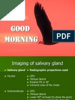 Maxillary Sinus Disease -Power Point Presentation