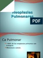 Neoplasias Pulmonares