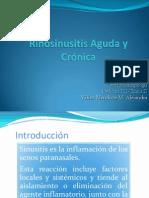 Sinusitis aguda y cronica