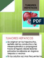 3.- tumoreshepticos BENIGNOS
