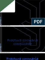 Fractura Coronaria Complicada Mayo 2013