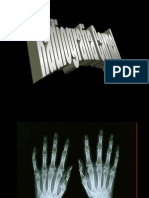 Radiografia Carpal