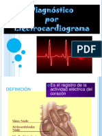 DX ECG