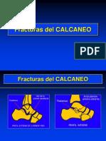 04- Fracturas Del Calcaneo