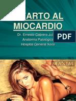 11a Infarto Al Miocardio