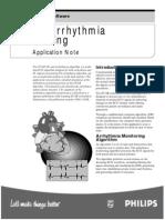 STAR arrhythmia monitoring.pdf