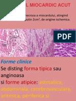 142992321-Infarctul-miocardic-acut