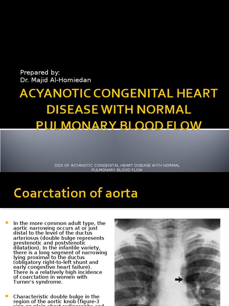 Acyanotic Congenital Heart Disease With Normal Pulmonary