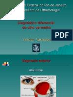 Aula oftalmo