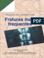 Imagens Em Osteoporose