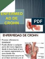 crohn