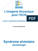 Syndromes Alveolaires Interstitiels