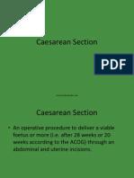 caesareansection