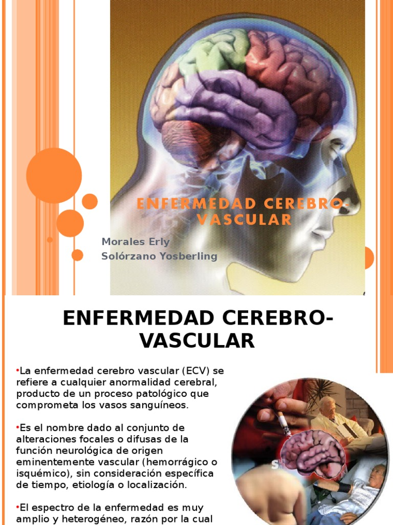 Atractivo Anatomía Y Fisiología Del Ppt Accidente Cerebrovascular ...