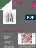 enfermedad_intersticial_difusa