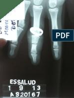 Lesión de dedo por anillo - Presentación de un caso