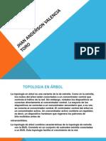 Topologia Del Arbol (Jhan Anderson Valencia).pptx