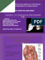 Infarto Agudo Al Miocardio Nueva 2