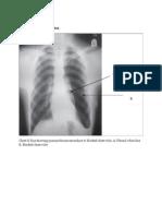 Open Pneumothoraxx
