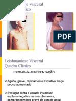 1239825338856leishmaniose Visceral Quadro Clnico